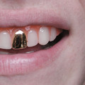 gold-tooth